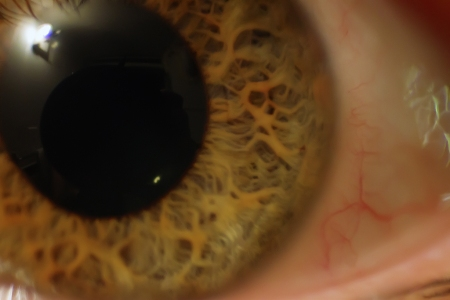 I-to-Eye